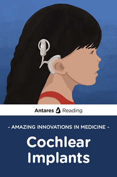 Amazing Innovations in Medicine: Cochlear Implants, Antares Reading